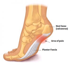 A Guide to Plantar Fasciitis 1