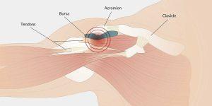 Shoulder Impingement Syndrome 1