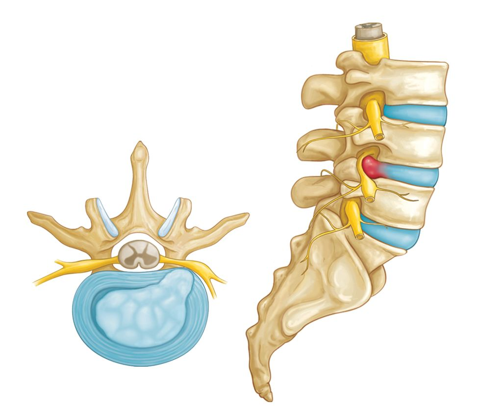 Lumbar Disc Protrusion Management 1