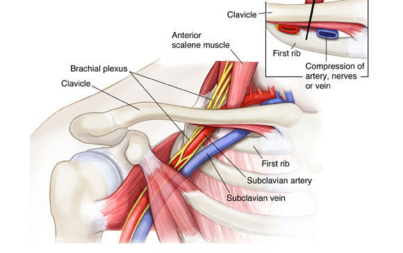 THORACIC OUTLET SYNDROME 1